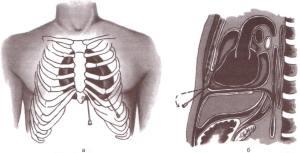 Топографическая анатомия средостения
