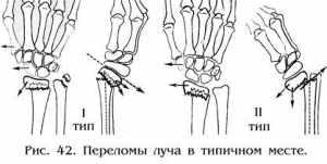 Переломы костей диафиза предплечья