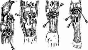 Уровень пункции эпидурального пространства для обезболивания различных органов