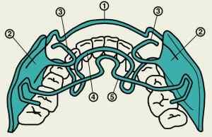 Аномалии зубных рядов в сагиттальной плоскости