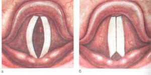Хронический гиперпластический (гипертрофический) ларингит